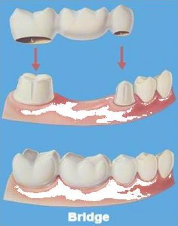 Proteze dentare de la Cmi Dr Inisconi Mariana Constantina